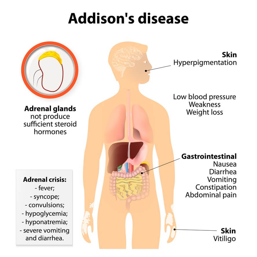 Addison's Disease: Autoimmune Disease: Signs & Symptoms Your Body Is Attacking Itself + Treatments | Dr. Jiwani's Naturopathic Nuggets Blog
