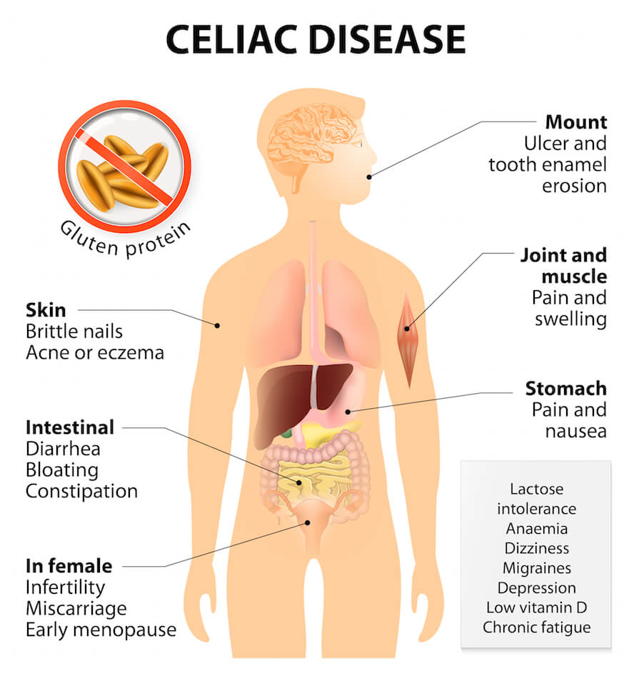 Celiac Disease: Autoimmune Disease: Signs & Symptoms Your Body Is Attacking Itself + Treatments | Dr. Jiwani's Naturopathic Nuggets Blog