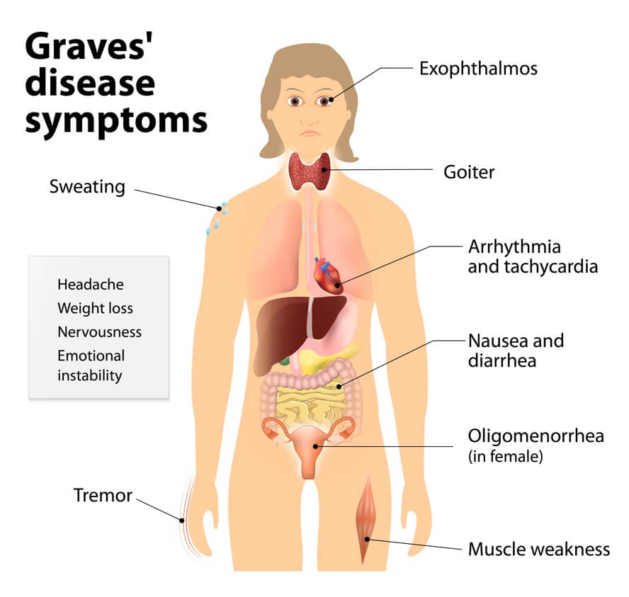 Autoimmune Grave's Disease Hyperthyroid: Autoimmune Disease: Signs & Symptoms Your Body Is Attacking Itself + Treatments | Dr. Jiwani's Naturopathic Nuggets Blog