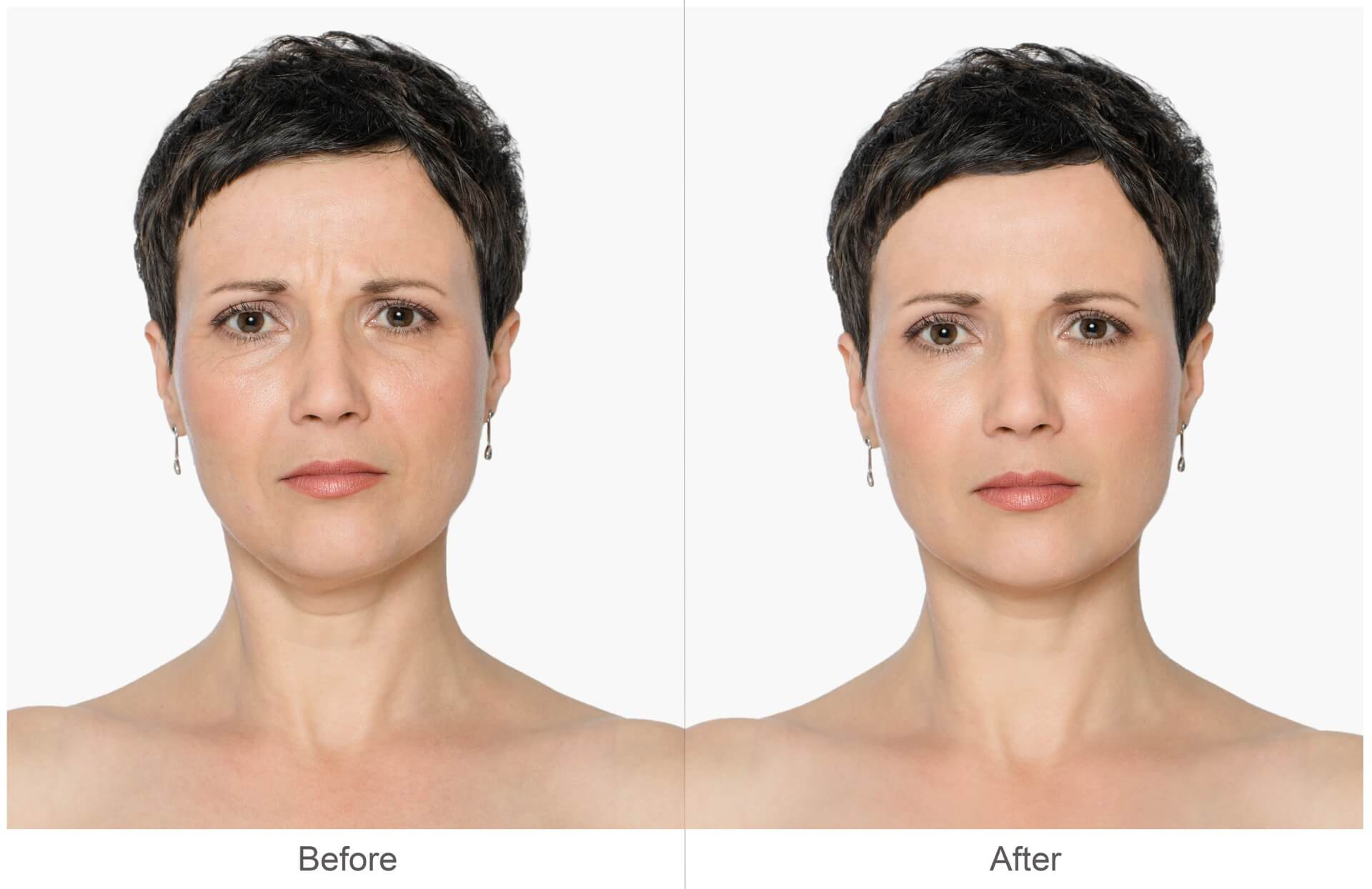 Botox Cosmetic Before & After Pictures | Dr. Jiwani Naturopathic Vancouver Burnaby Surrey