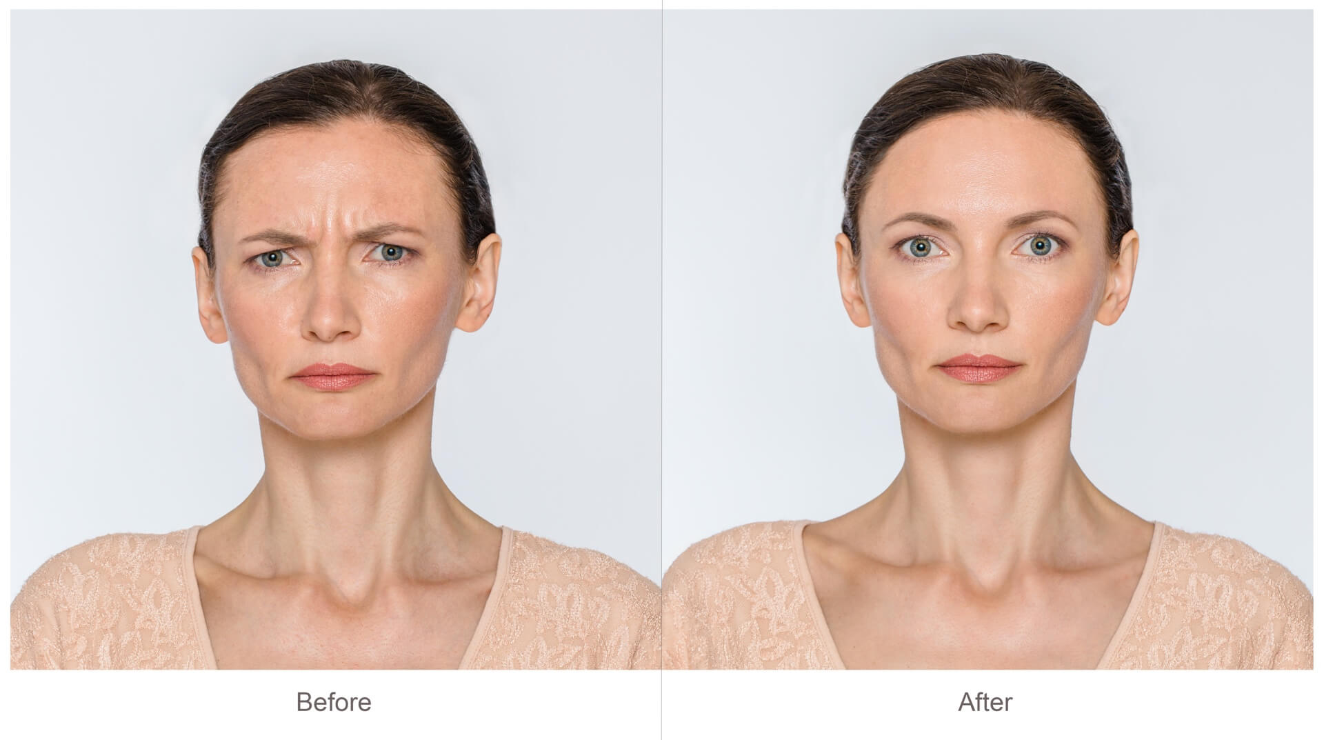 Botox Cosmetic Before & After* Pictures | Dr. Jiwani Naturopathic Vancouver Burnaby Surrey