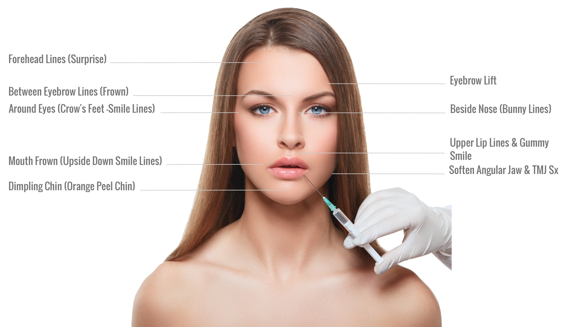 FAQ Botox Cosmetic Treatment Areas Pictures | Dr. Jiwani Naturopathic Vancouver Burnaby Surrey