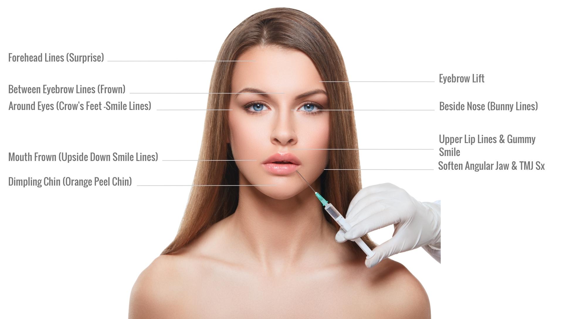 Botox Cosmetic Treatment Areas | Dr. Jiwani Naturopathic Vancouver Burnaby Surrey