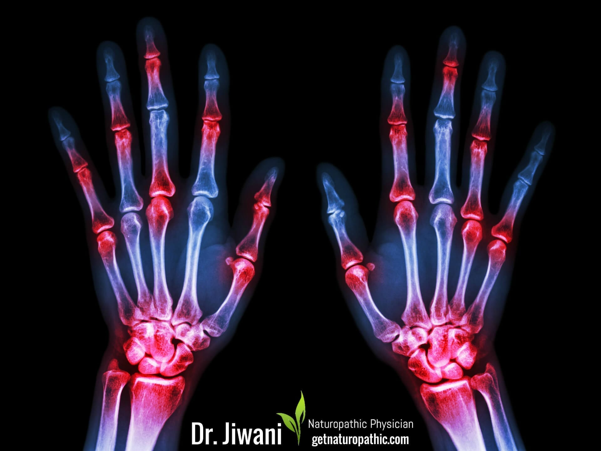 DrJiwani Intermittent Fasting for Health, Energy & Weight Loss Rheumatoid Arthritis* | Dr. Jiwani's Naturopathic Nuggets Blog
