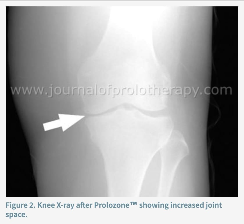 Prolozone Therapy: Natural Treatment for Joint Pain & Dysfunction   Dr. Jiwani's Naturopathic Nuggets Blog