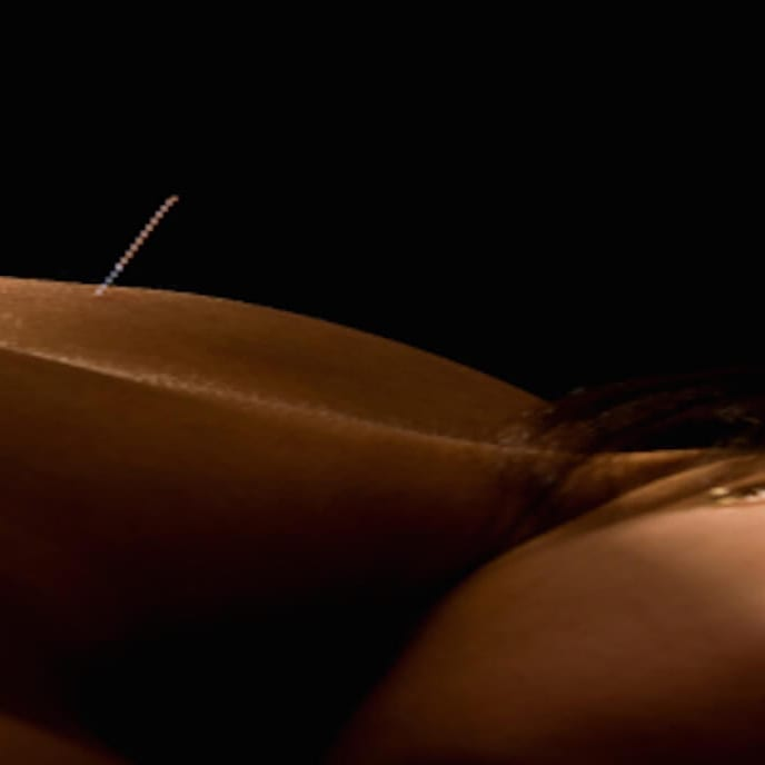Acupuncture: The Ancient Asian Art of Healing | Dr. Jiwani Naturopathic Vancouver Burnaby Surrey